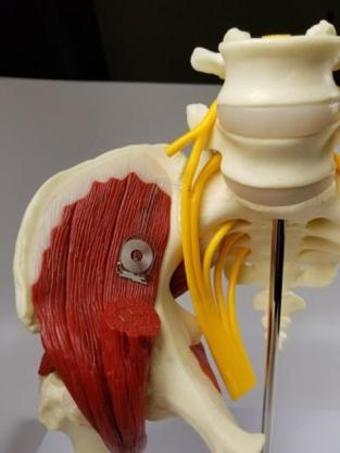 the-implant.jpg