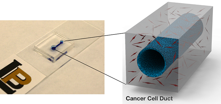 cancer-cell-duct