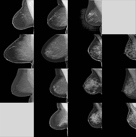 dense-breast-identify