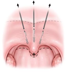 Elevoplasty.png