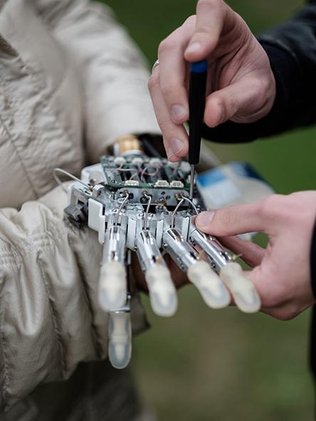 true-prosthetic.jpg