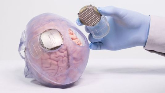 brain-implants