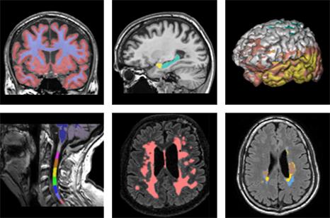 brain-biomarkers